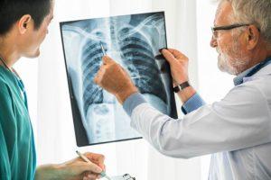 Älterer Lungenfacharzt, der ein Röntgenbild mit einem Patienten bespricht.