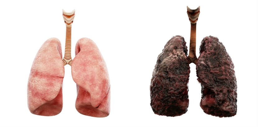 Lungenfacharzt Graz