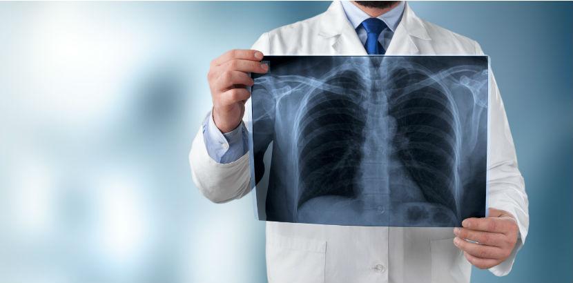 Lungenfacharzt