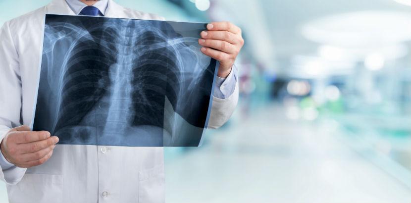 Lungenkrebs: ein Arzt mit einem Röntgenbild