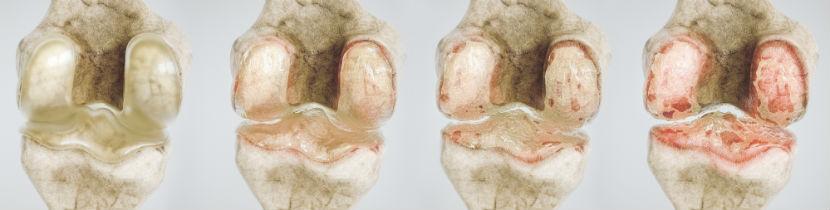 Orthopäde Wiener Neustadt: Kniegelenksarthrose