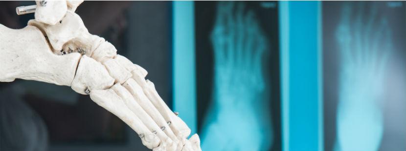 Orthopäde Wiener Neustadt: Röntgenbild Fuß