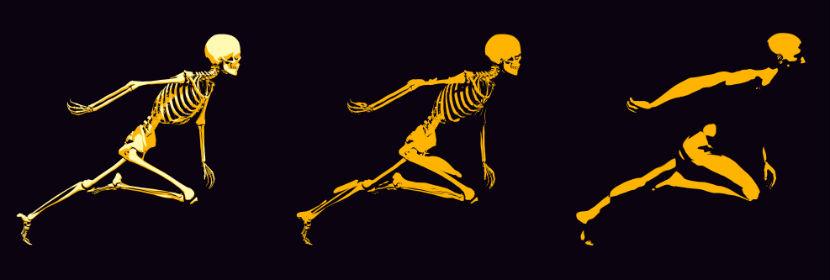 Orthopäde Wiener Neustadt: ein laufendes Skelett
