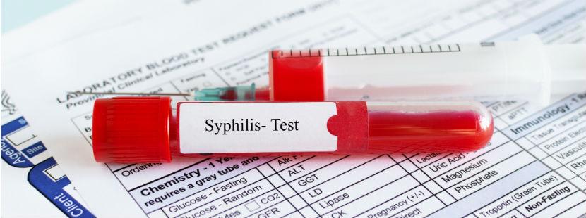 Syphilis Test: eine Blutprobe