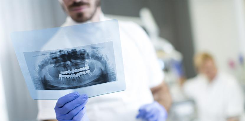 Ein Arzt blickt auf die Daten einer Röntgen Aufnahme.