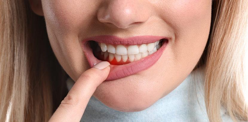 Eine Frau zieht ihre Unterlippe mit dem Zeigefinger nach unten und zeigt ihr Zahnfleisch.
