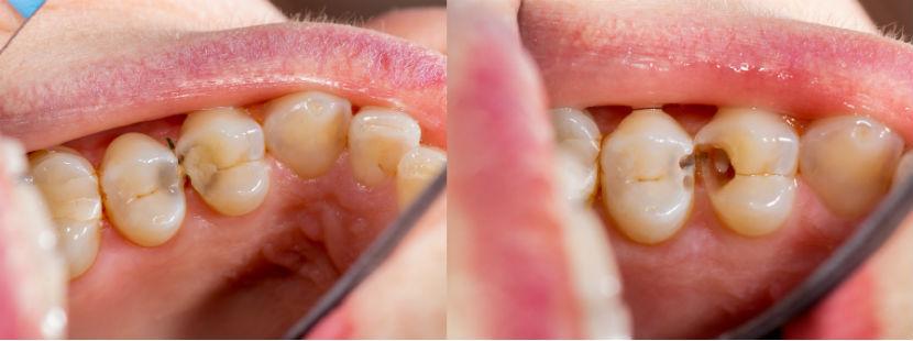 Zahnarzt Innsbruck: Vergleichsbild Zahn mit Loch und Füllung