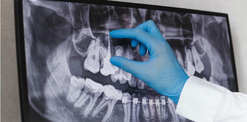 Zahnarzt Innsbruck: ein zahnärztliches Röntgenbild