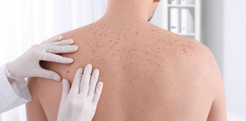Hautarzt Linz: Ärztin untersucht Rücken eines Patienten.