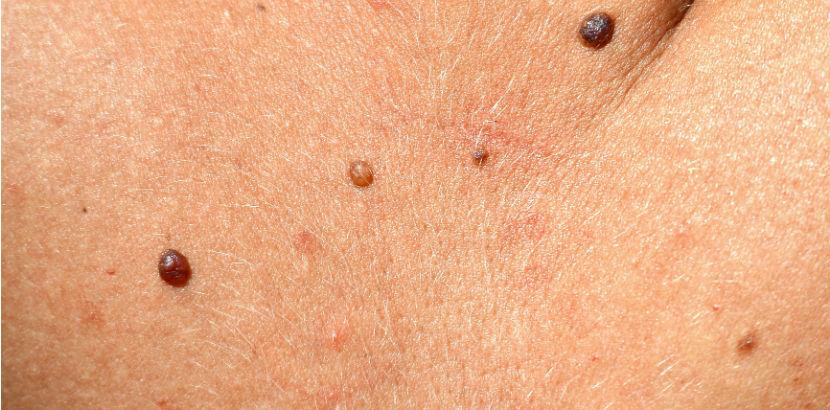 Hautarzt Salzburg: Haut mit Muttermalen