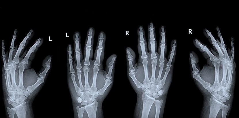 Röntgenbilder des rechten und linken Handgelenks