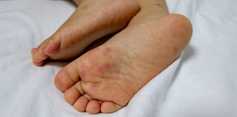 Hand-Fuß-Mund-Krankheit
