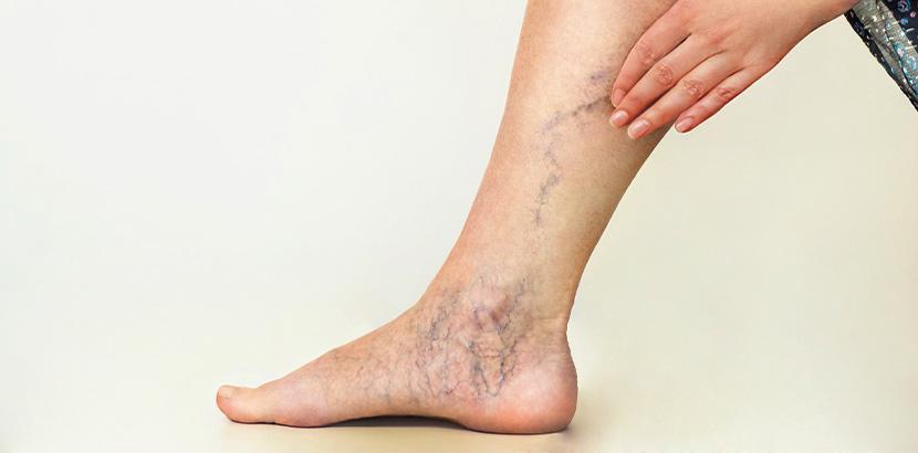 Eine Frau mit varikösen Venen an Bein und Fuß.