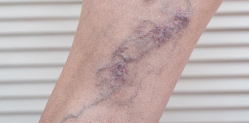 Varizen im fortgeschrittenen Stadium am Bein eines Patienten.