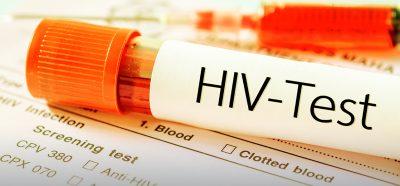 Der AIDS Test