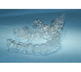 Transparente Zahnspangen
