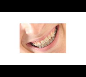 Klassische Zahnspangen für Kinder und Erwachsene