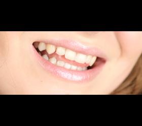 Schöne Zähne durch Zahnaufhellung