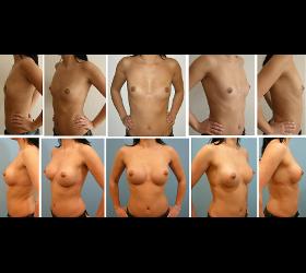 Brust - Brustverkleinerung - Brustvergrößerung
