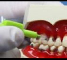 Mundhygiene & Zahnstein entfernen