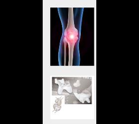 Spezialgebiet Knie Kniegelenksarthroskopie