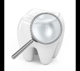 Zähne: Kontrolluntersuchungen & Vorsorge