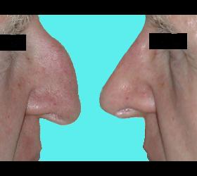 Rhinoplastik - Nasenkorrektur - Nasenoperation