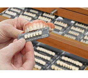 Prothetik FISCHER-dental