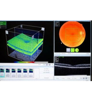 Produktbild von Spectral Domain Optical Coherence Tomography (SD-OCT)