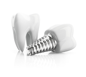 Implantologie / Implantate