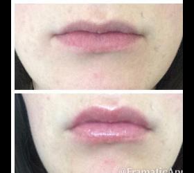 Konturen Lipgloss